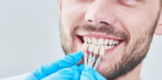What is the Procedure for Acquiring Dental Veneers - Dental Clinic London