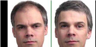 hair transplant 2021
