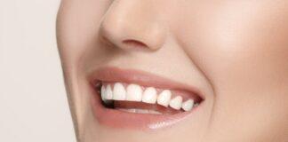 dental veneers cost in Cancun