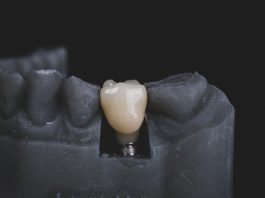 image showing dental implants