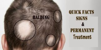 causes of bald spots- Balding: Quick Facts, Signs, and Permanent Treatment