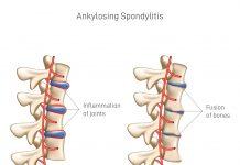 yoga for ankylosing spondylitis