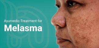 melasma treatment in ayurveda